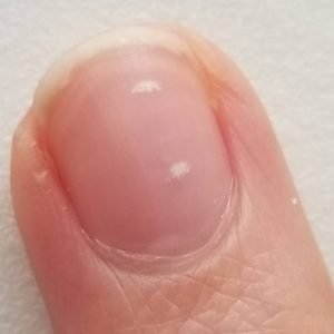 Zinc Deficiency Signs Seen in the Nails
